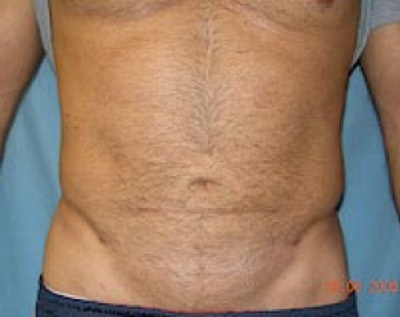 Liposuction and Smartlipo Gallery - Patient 5883326 - Image 2