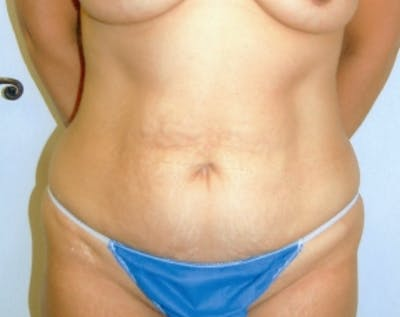 Tummy Tuck Gallery - Patient 5883327 - Image 1