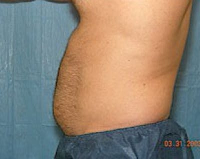 Liposuction and Smartlipo Gallery - Patient 5883328 - Image 1