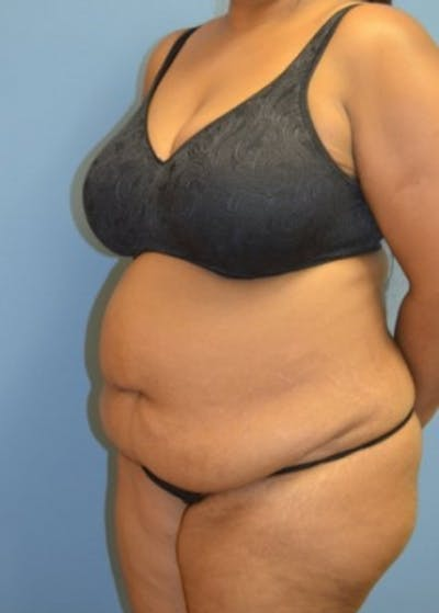 Tummy Tuck Gallery - Patient 5883329 - Image 1