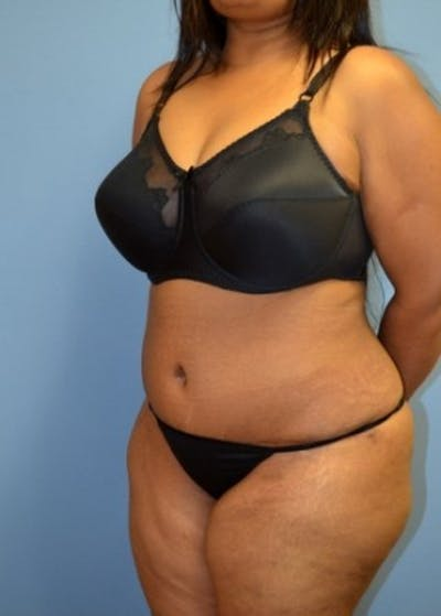 Tummy Tuck Gallery - Patient 5883329 - Image 5