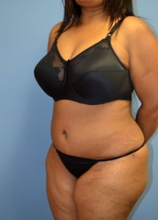 Tummy Tuck Gallery - Patient 5883329 - Image 2