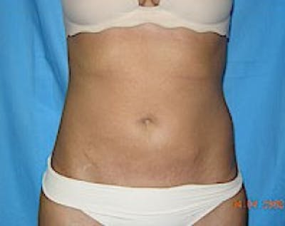 Liposuction and Smartlipo Gallery - Patient 5883330 - Image 23