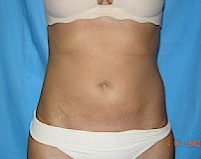 Liposuction and Smartlipo Gallery - Patient 5883330 - Image 2
