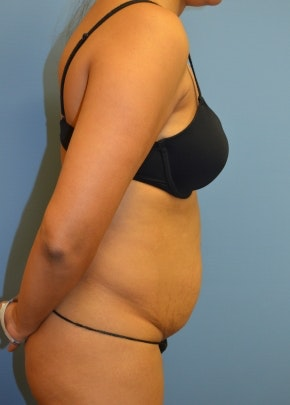 Tummy Tuck Gallery - Patient 5883331 - Image 1
