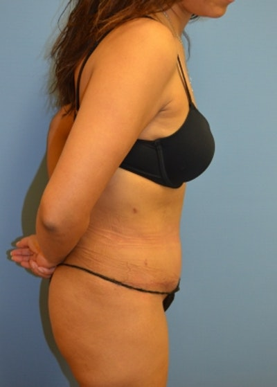 Tummy Tuck Gallery - Patient 5883331 - Image 2