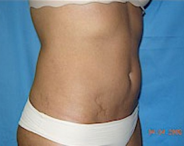 Liposuction and Smartlipo Gallery - Patient 5883332 - Image 2