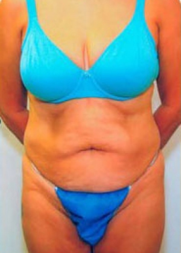 Tummy Tuck Gallery - Patient 5883333 - Image 1