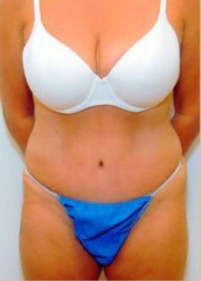 Tummy Tuck Gallery - Patient 5883333 - Image 7