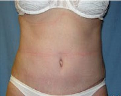 Liposuction and Smartlipo Gallery - Patient 5883334 - Image 25