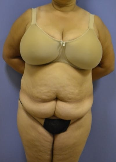 Tummy Tuck Gallery - Patient 5883335 - Image 1