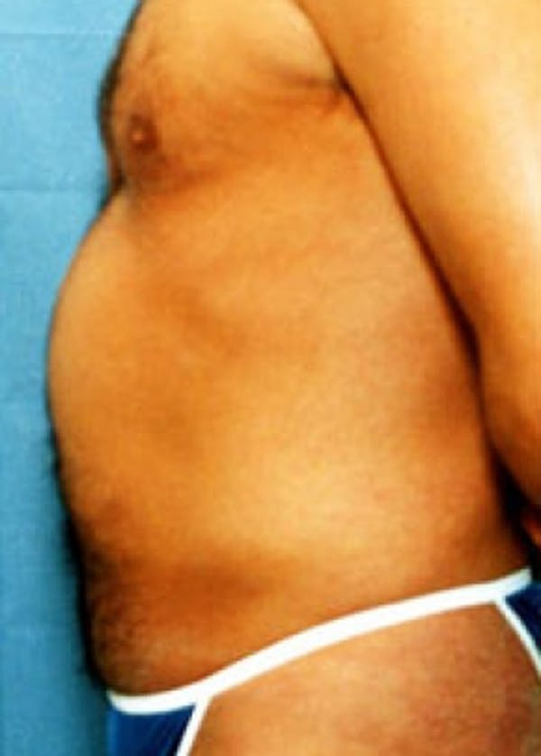 Liposuction and Smartlipo Gallery - Patient 5883336 - Image 1