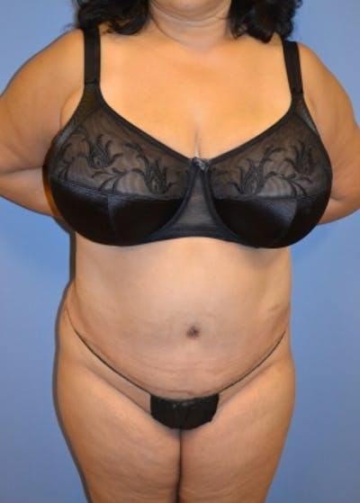 Tummy Tuck Gallery - Patient 5883335 - Image 2