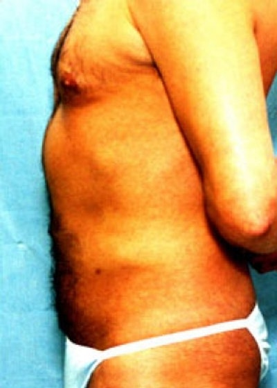 Liposuction and Smartlipo Gallery - Patient 5883336 - Image 2