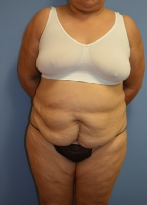 Tummy Tuck Gallery - Patient 5883340 - Image 1