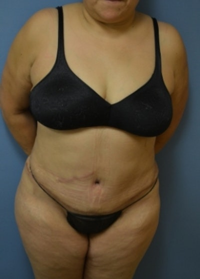 Tummy Tuck Gallery - Patient 5883340 - Image 2