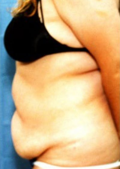 Liposuction and Smartlipo Gallery - Patient 5883341 - Image 1