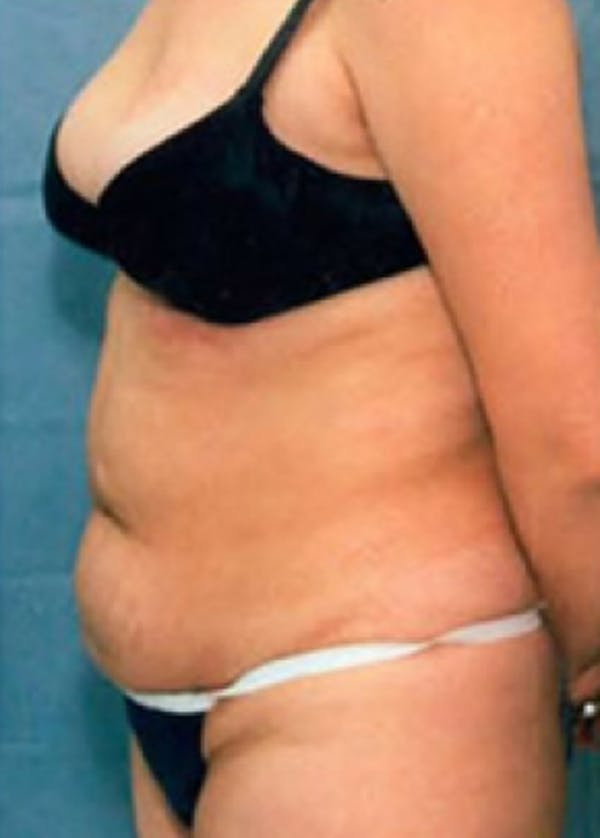 Liposuction and Smartlipo Gallery - Patient 5883343 - Image 1
