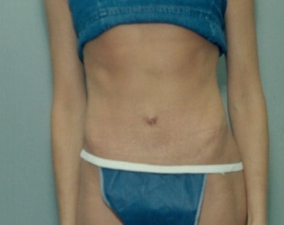 Tummy Tuck Gallery - Patient 5883342 - Image 2