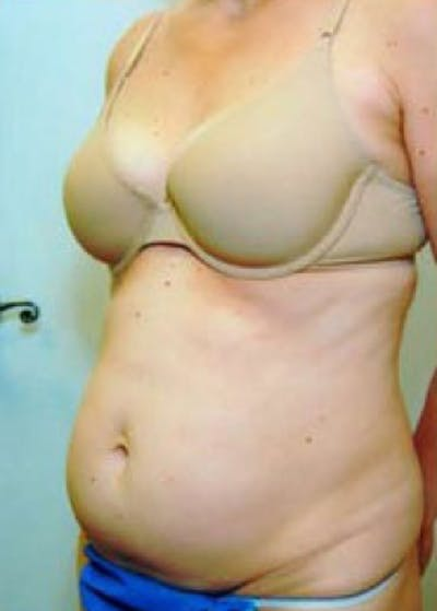 Tummy Tuck Gallery - Patient 5883344 - Image 1