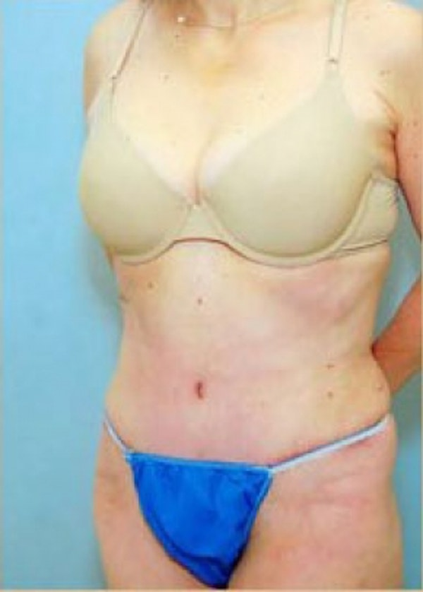 Tummy Tuck Gallery - Patient 5883344 - Image 2