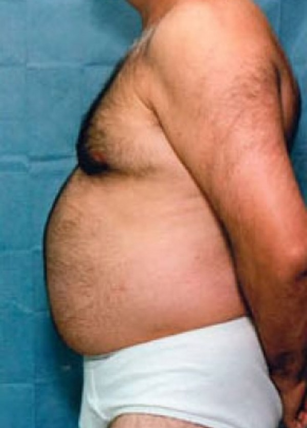 Liposuction and Smartlipo Gallery - Patient 5883345 - Image 1