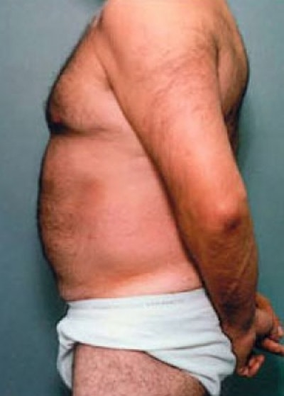 Liposuction and Smartlipo Gallery - Patient 5883345 - Image 2