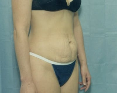 Tummy Tuck Gallery - Patient 5883346 - Image 1