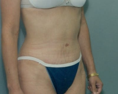 Tummy Tuck Gallery - Patient 5883346 - Image 2