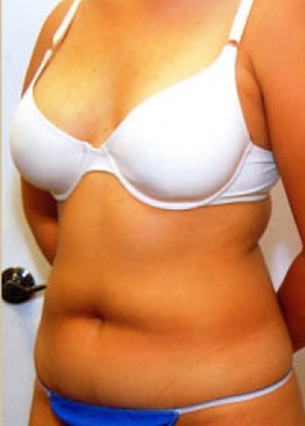 Liposuction and Smartlipo Gallery - Patient 5883347 - Image 1