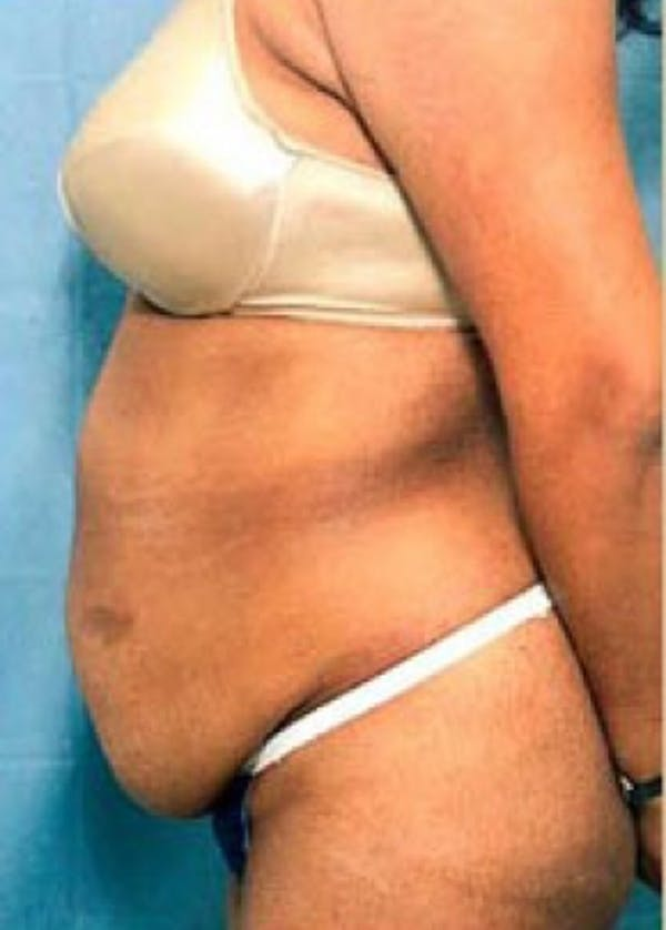 Tummy Tuck Gallery - Patient 5883350 - Image 1