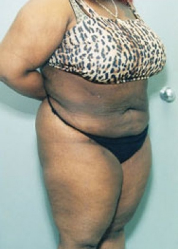 Liposuction and Smartlipo Gallery - Patient 5883349 - Image 2