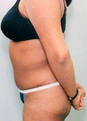 Tummy Tuck Gallery - Patient 5883350 - Image 2
