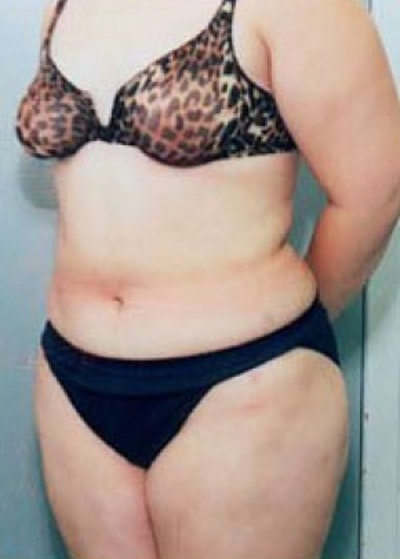 Liposuction and Smartlipo Gallery - Patient 5883351 - Image 2