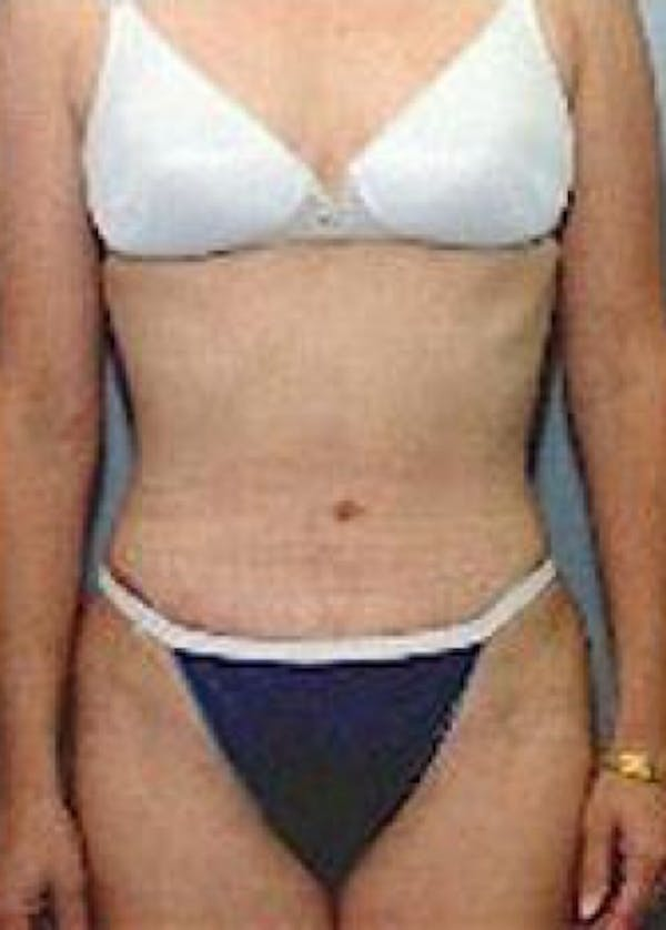 Tummy Tuck Gallery - Patient 5883354 - Image 2