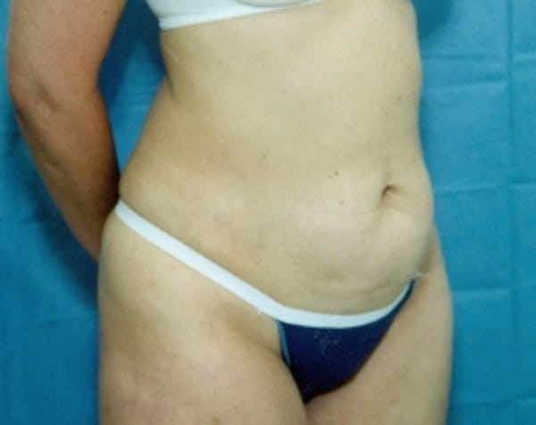 Liposuction and Smartlipo Gallery - Patient 5883355 - Image 1