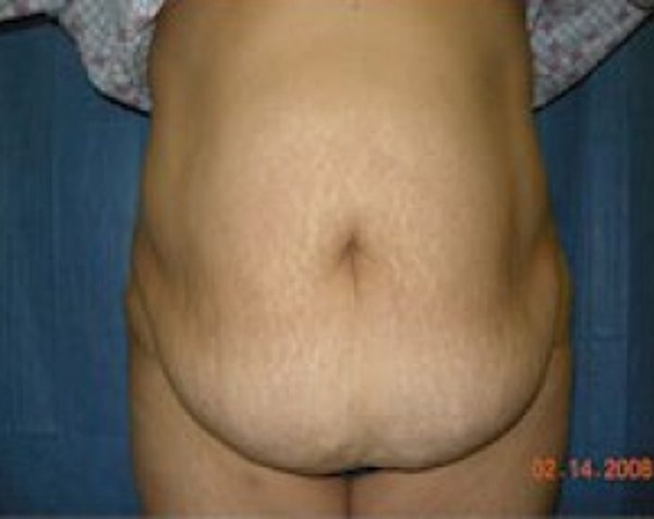 Tummy Tuck Gallery - Patient 5883357 - Image 1