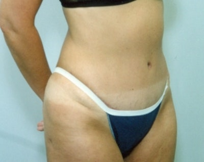 Liposuction and Smartlipo Gallery - Patient 5883355 - Image 2