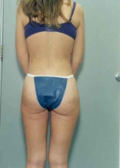 Liposuction and Smartlipo Gallery - Patient 5883356 - Image 36