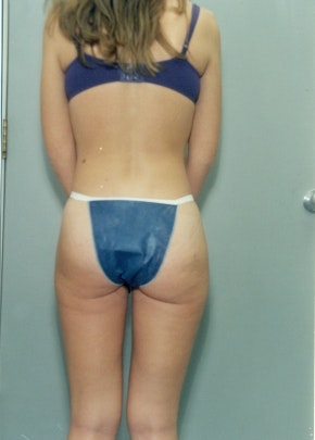Liposuction and Smartlipo Gallery - Patient 5883356 - Image 2