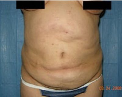 Tummy Tuck Gallery - Patient 5883359 - Image 1