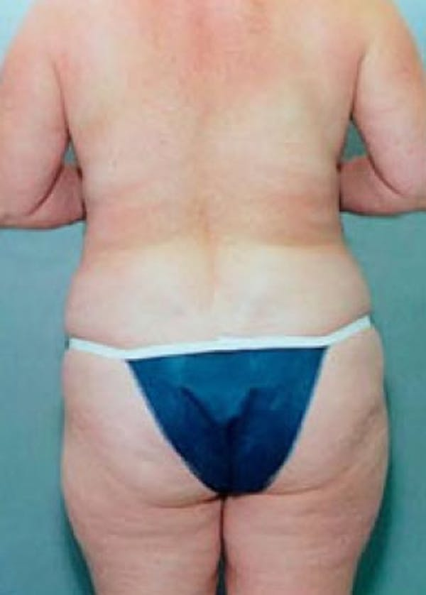 Liposuction and Smartlipo Gallery - Patient 5883358 - Image 2