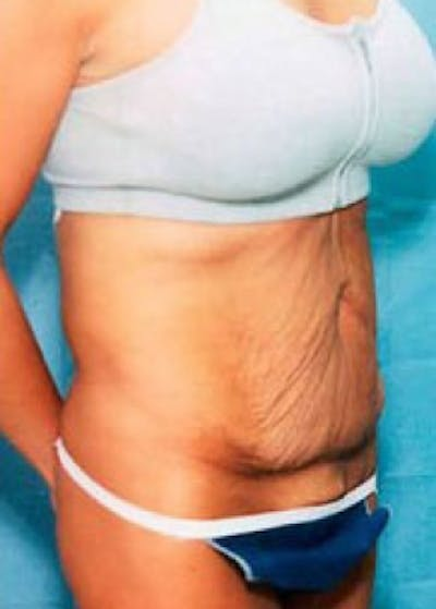 Tummy Tuck Gallery - Patient 5883367 - Image 1