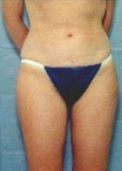 Liposuction and Smartlipo Gallery - Patient 5883366 - Image 2