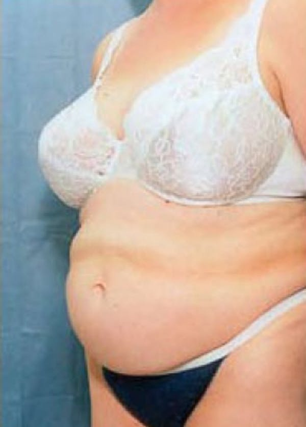 Tummy Tuck Gallery - Patient 5883369 - Image 1