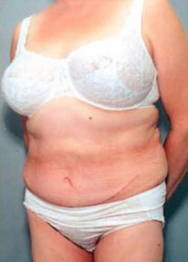 Tummy Tuck Gallery - Patient 5883369 - Image 2