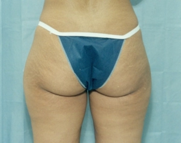 Liposuction and Smartlipo Gallery - Patient 5883370 - Image 1