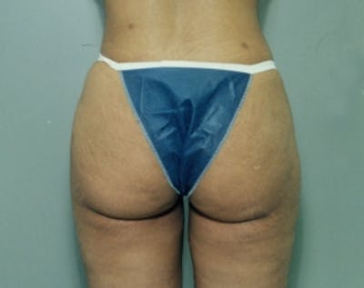 Liposuction and Smartlipo Gallery - Patient 5883370 - Image 40