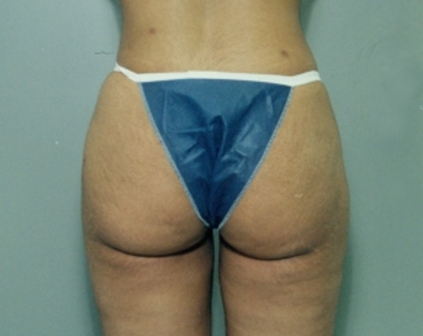 Liposuction and Smartlipo Gallery - Patient 5883370 - Image 2