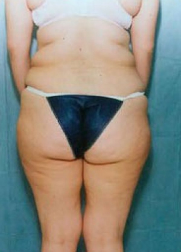 Liposuction and Smartlipo Gallery - Patient 5883372 - Image 1
